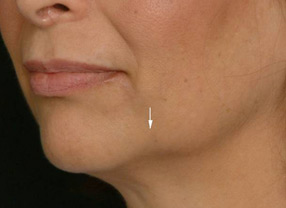 Injection Peeling Ovale du Visage